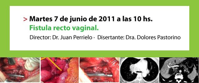 Fistula recto vaginal